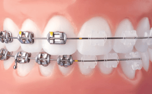 What do clear braces look like versus metal braces at NCOSO
