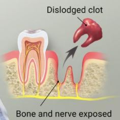What Should I Do After My Wisdom Teeth Removal Ncoso