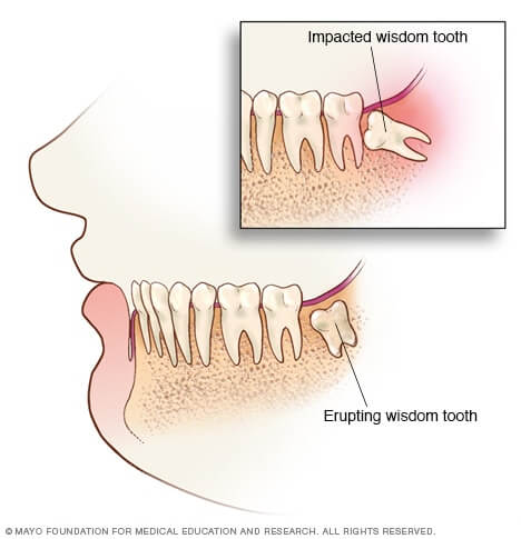 Mayo Clinic impacted Wisdom teeth illustration
