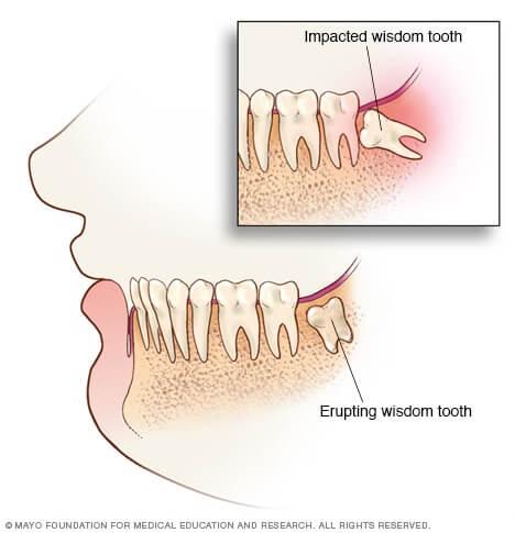 Mayo Clinic impacted Wisdom teeth illustration