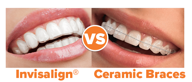 Invisalign versus Ceramic Clear Braces photo