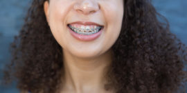 NCOSO Female Teen with Braces