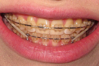 Stained ceramic braces after 1 year