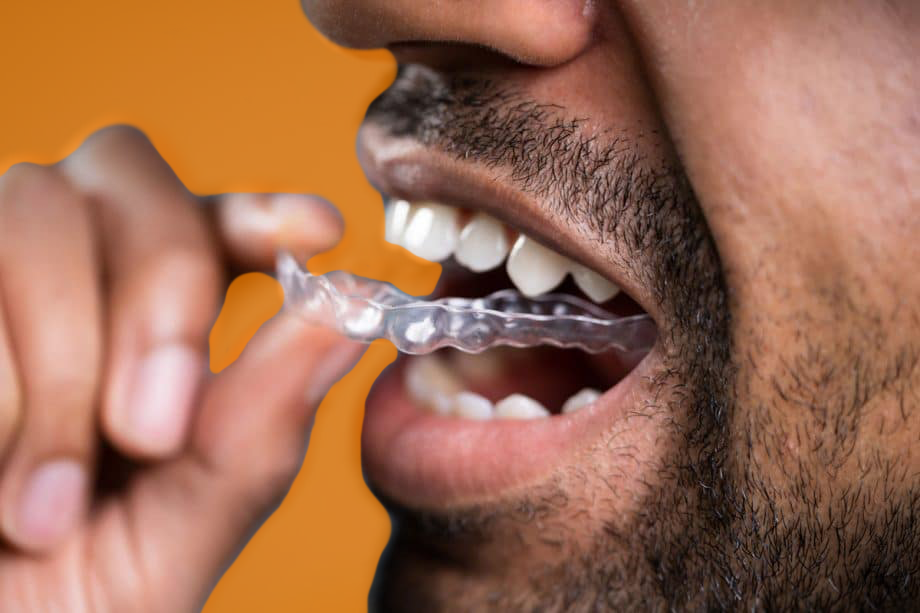 patient putting retainer in mouth